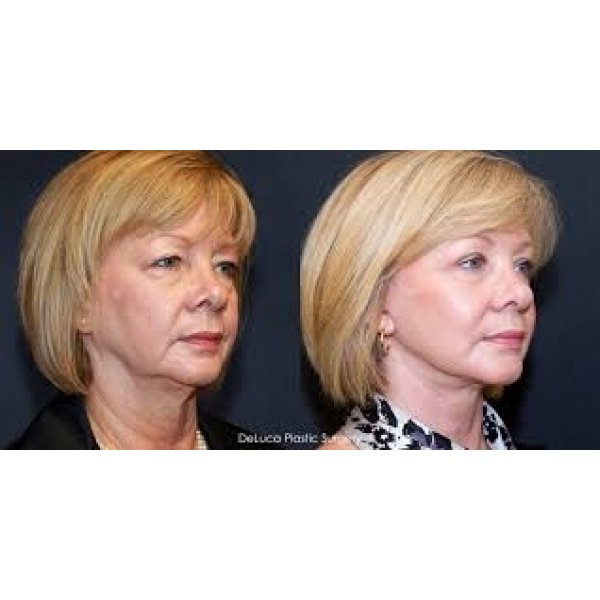 Clínica de Lifting Facial