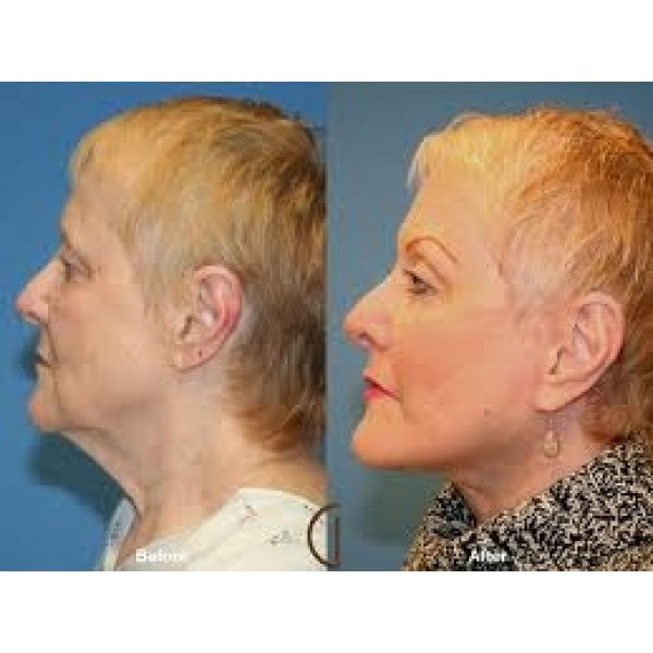 Clínicas Lifting Facial