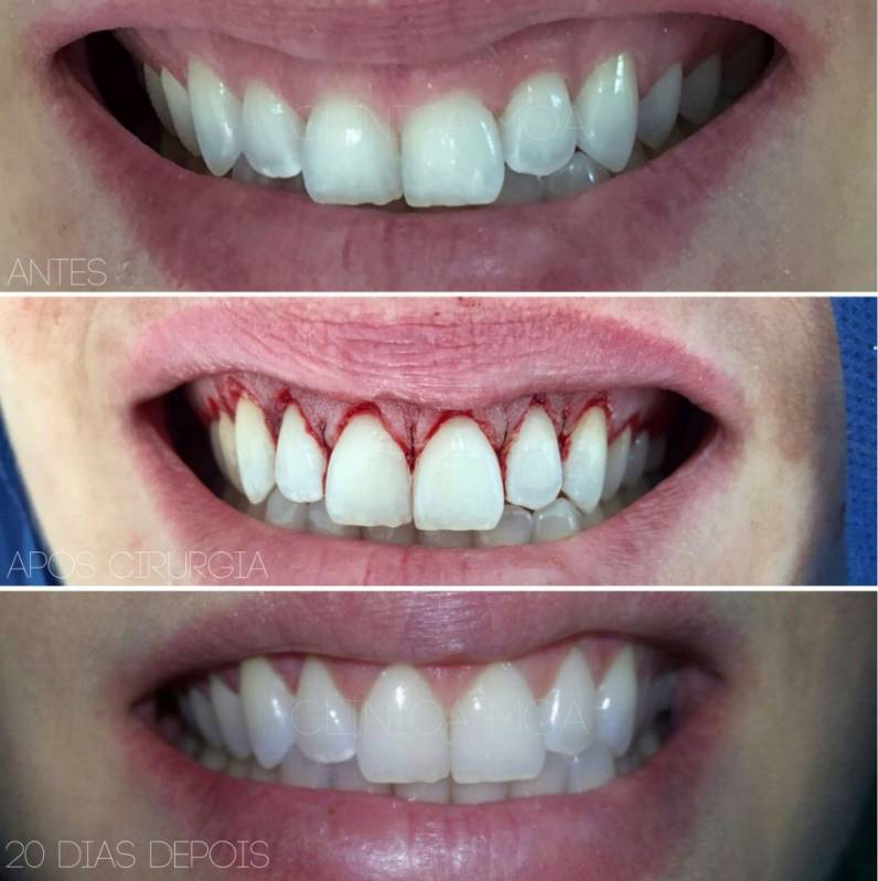 Clínica para Clareamento Dental a Laser