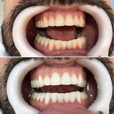 Estética Dental com Clareamento